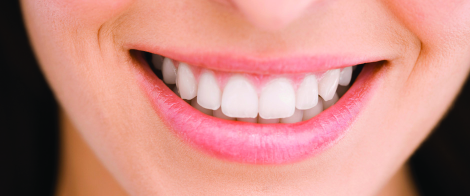 Great tooth whitening solutions